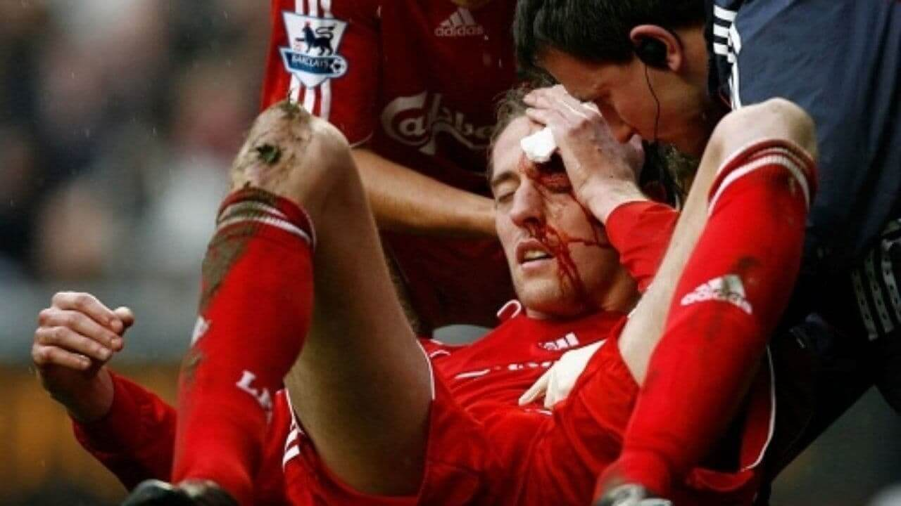 12 самых ужасных травм в футболе за все время (фото и видео)